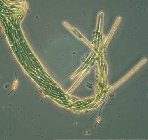cyanobacteria microscopicMicroscopic Plants In Pond Water